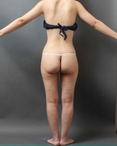 ベイザー脂肪吸引 他院修正