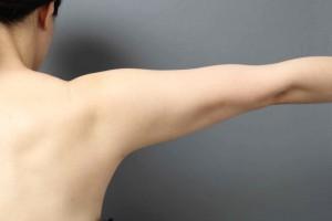 二の腕 VASER脂肪吸引 ベイザーリポ
