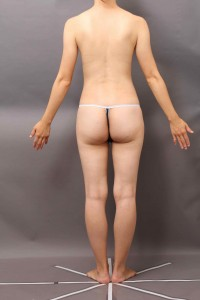 コンデンスリッチ豊胸 脂肪吸引部分