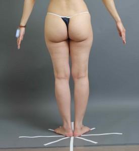 コンデンスリッチ豊胸 脂肪採取部位