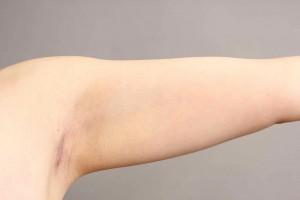 vaser脂肪吸引 二の腕