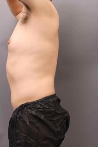 女性化乳房-vaser4d