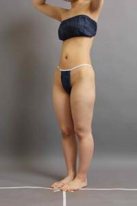 太もも膝 vaser脂肪吸引