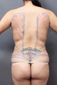 他院脂肪吸引修正 背中
