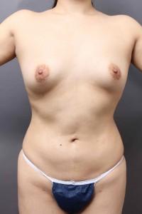 他院脂肪吸引修正