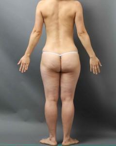 vaser脂肪吸引 太もも腰