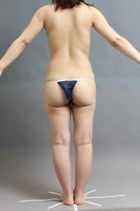 ベイザー脂肪吸引 腹部腰