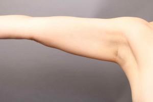 vaser脂肪吸引 二の腕肩