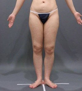 vaser脂肪吸引 太もも膝