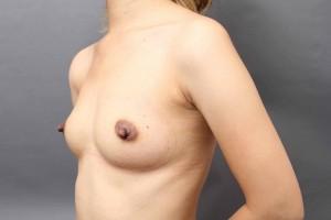 豊胸の脂肪採取部位
