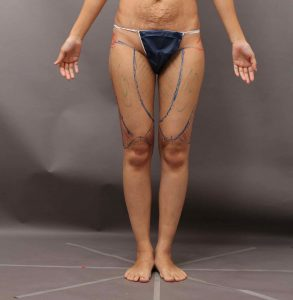 痩せ型 脂肪採取部位