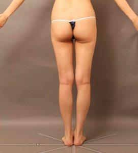 痩せ型-脂肪採取部位