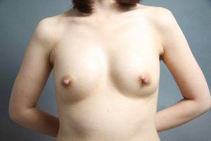CRF豊胸 脂肪採取部位