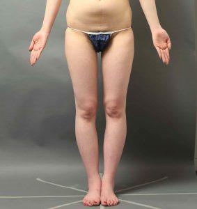内もも脂肪吸引