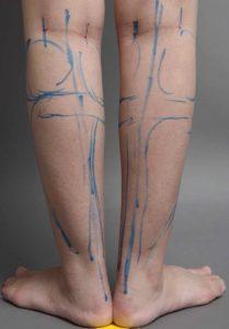 脂肪吸引 下腿