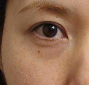 目の下のクマ マイクロCRF