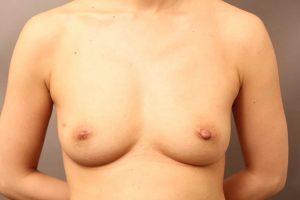 脂肪採取部位の変化