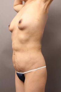 腹部脂肪吸引