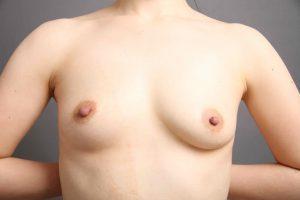vaser脂肪吸引