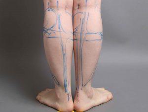 vaser脂肪吸引 下腿