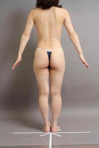 脂肪豊胸の脂肪採取部位