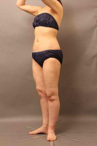 太腿のvaser脂肪吸引