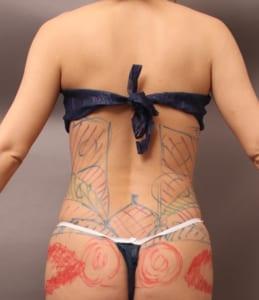 腰のベイザー脂肪吸引
