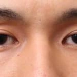 マイクロcrf 目の上と目の下