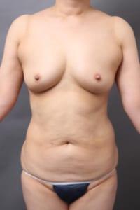 腹部 脂肪吸引